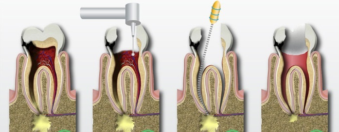 Root-Canal-Therapy-2
