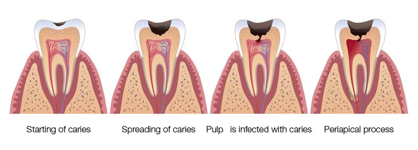 Root-Canal-Therapy