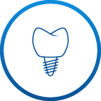 1300smiles Icons Dental Implants