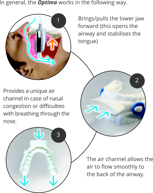 How Oventus Works To Stop Snoring 1300smiles Dentists